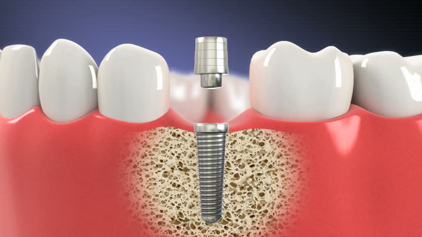 Dental implants NEO Smile Kyle Dentists